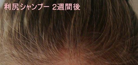 利尻カラーシャンプー白髪染め2週間後